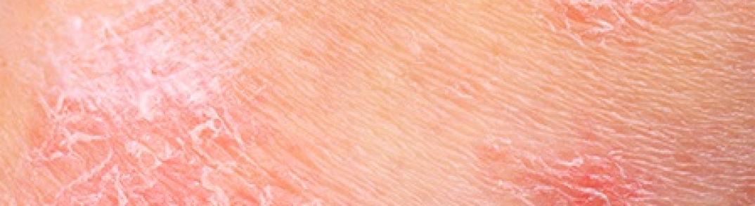 Dermatite atopique, eczéma, démangeaisons